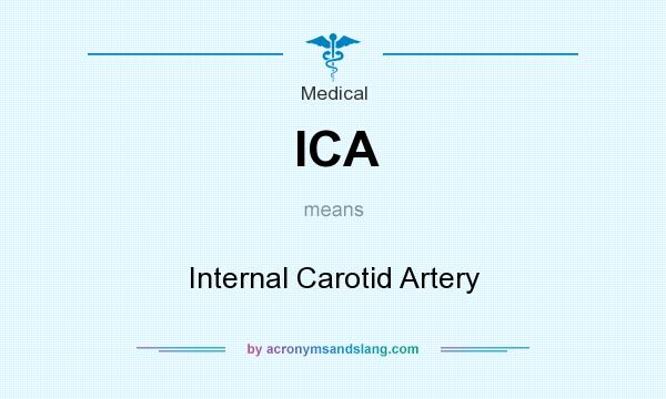 What does ICA mean? It stands for Internal Carotid Artery