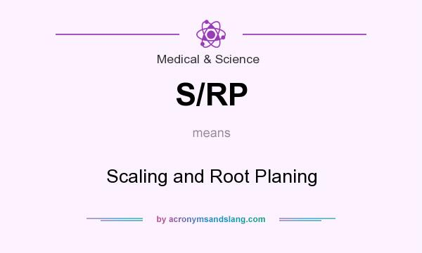 What does S/RP mean? It stands for Scaling and Root Planing